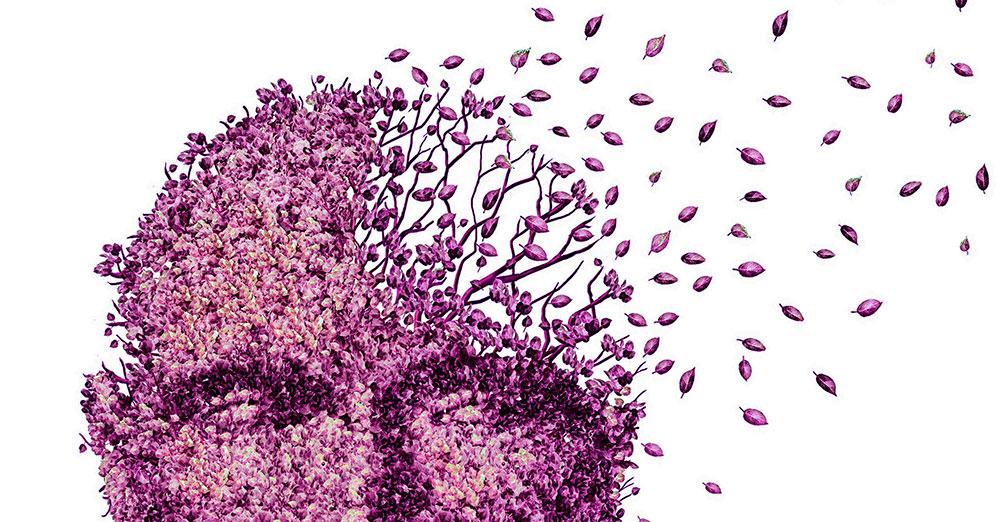 La demencia es una pérdida de la función cerebral que afecta a la memoria, al pensamiento, al lenguaje, al juicio y al comportamiento.