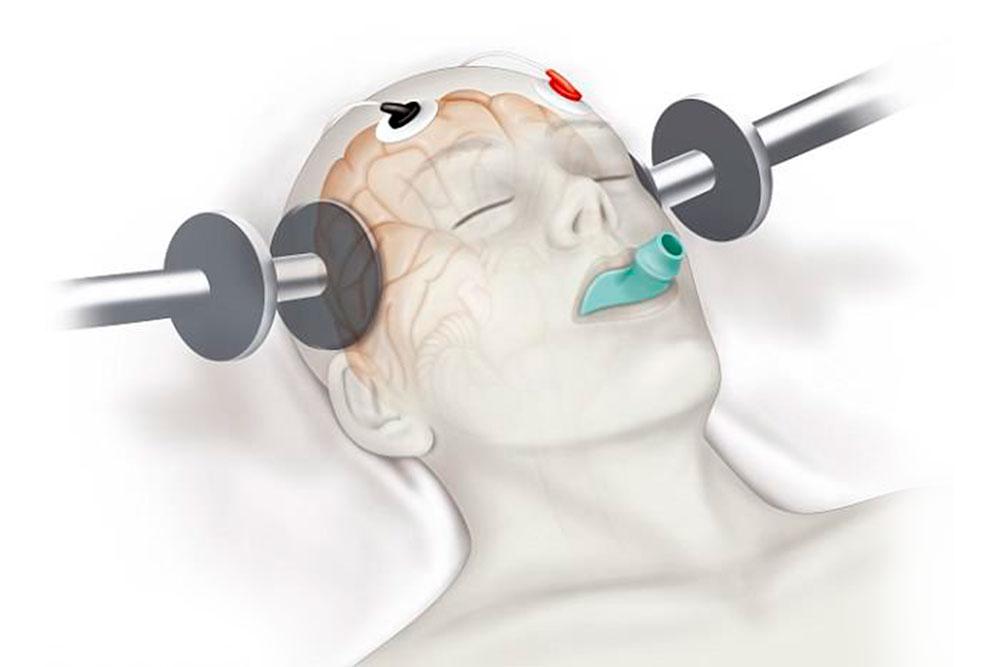 Terapia electroconvulsiva y depresión resistente