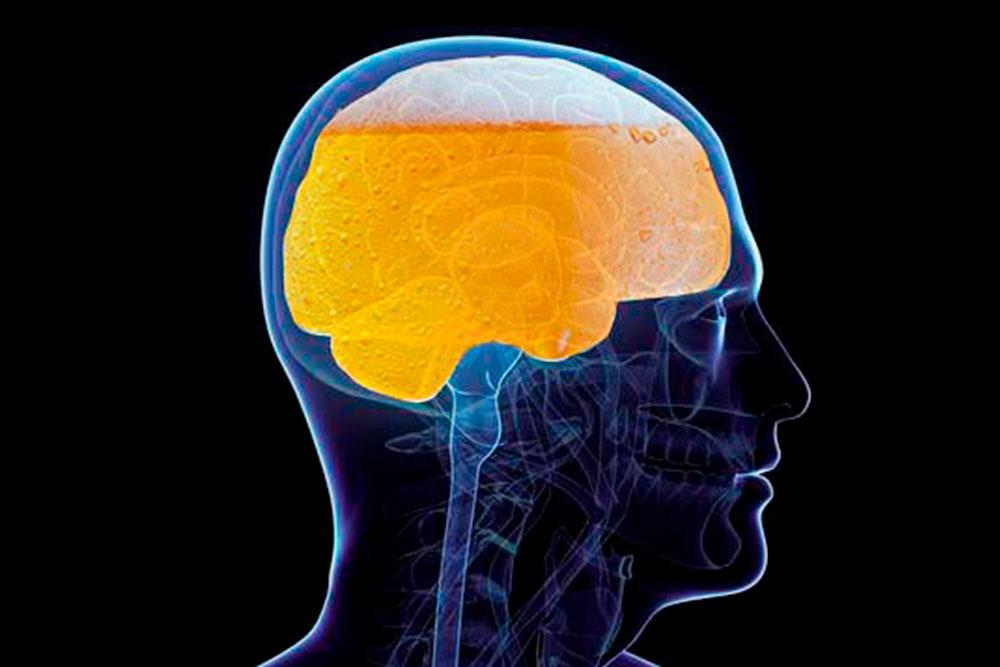 La Encefalopatía de Wernicke y la psicosis de Korsakoff representan la fase aguda y crónica de un único proceso de enfermedad de personas con alcoholismo.